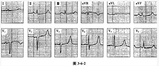 心电学技术习题集题库