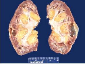 色-a-性_患者,进行性肾功能衰竭二年,手术切除患肾.